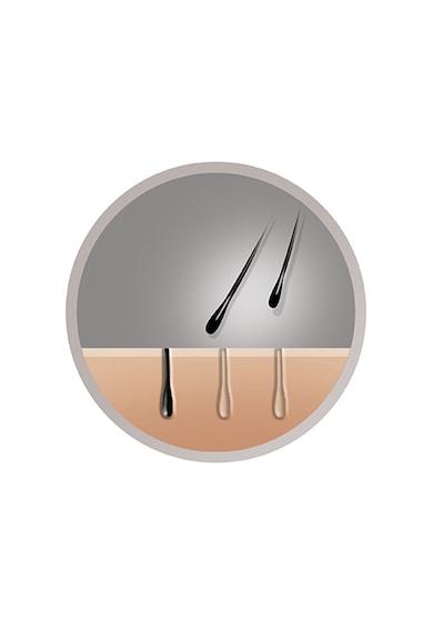 Remington Фотоепилатор IPL   i-Light, 150 000 импулса, За тяло и лице, 5 степени на мощност, Multi/Single-Flash, Сензор за кожата, Бял Жени